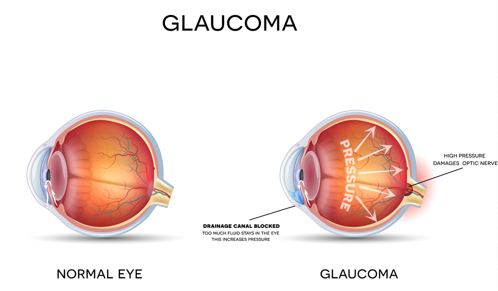 diagram of healthy eye vs eye with glaucoma